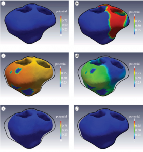 Electro-mechanical model of a patient-specific heart