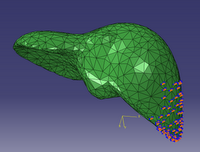 Liver finite-element model with fixed boundary conditions.