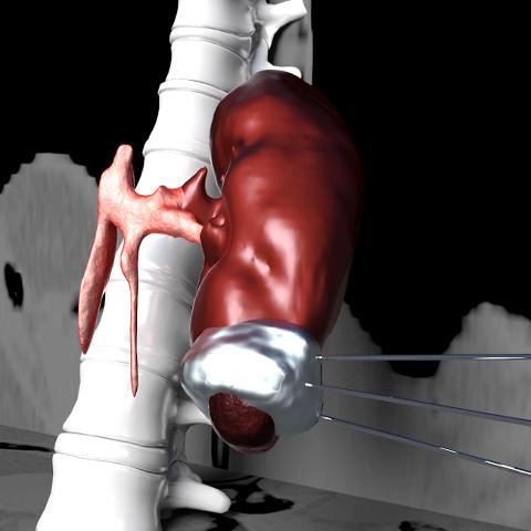 Cryosurgery Simulation
